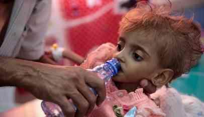 «الصحة العالمية»: ملايين الأطفال في اليمن بحاجة إلى مساعدة
