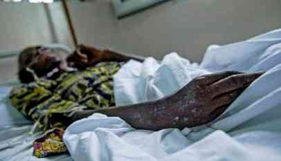 «الحمى الصفراء» تقضي على 10 أشخاص في إثيوبيا