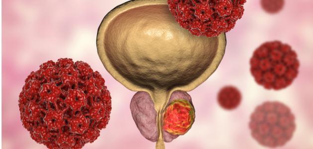 أعراض الإصابة بمرض سرطان البروستاتا