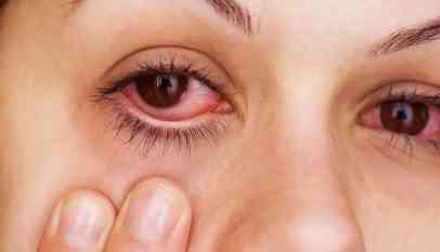 علاج حساسية العين عند الأطفال