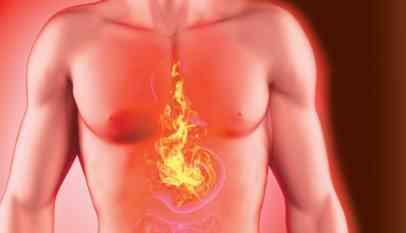 أسباب حدوث حرقة في المعدة وأعراضها