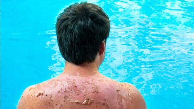 أعراض حدوث ضربة شمس وتأثيرها على الجلد