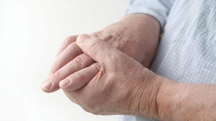 نصائح لمرضى التهاب المفاصل الروماتيزمي