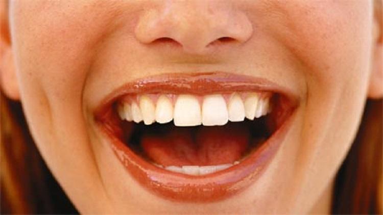أبحاث تؤكد فوائد الضحك صحيًا ونفسيًا
