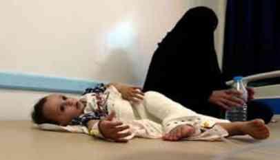 الأمم المتحدة تحذر من كارثة إنسانية واقتصادية في اليمن