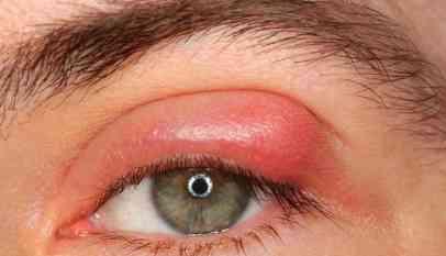مخاطر تكون دمل العين وطريقة علاجه