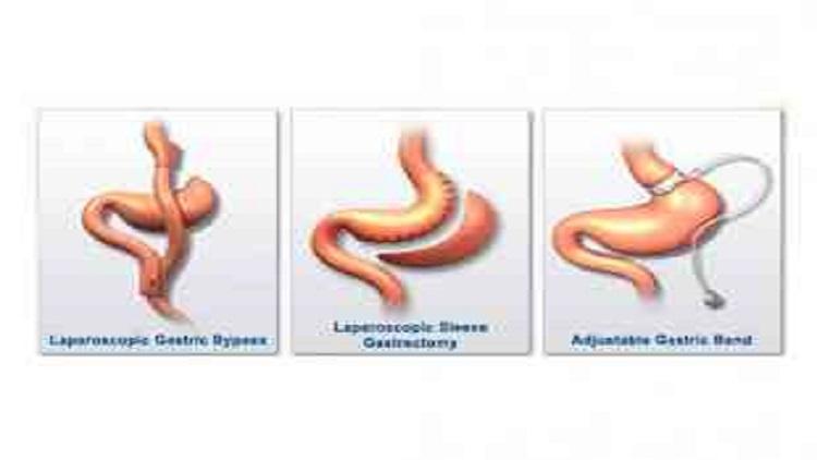 أنواع عمليات علاج السمنة 1