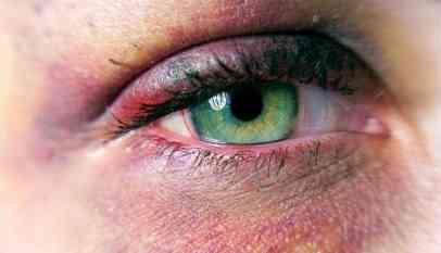 أنواع الإصابات في العين وكيفية التعامل معها