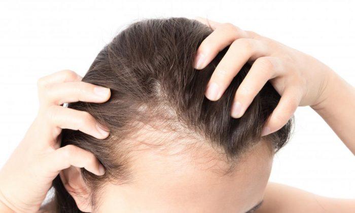 أسباب تساقط الشعر عند النساء و العلاج الفعال