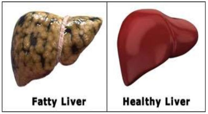 اسباب دهون الكبد وأفضل طرق العلاج