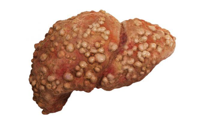 سرطان الكبد جميع المعلومات في ملف كامل عنه
