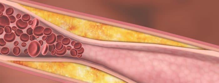 أسباب زيادة دهون الدم وطرق الوقايه من ارتفاعها
