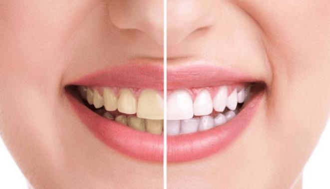 تعرف على طرق التخلص من البقع البنية على الأسنان
