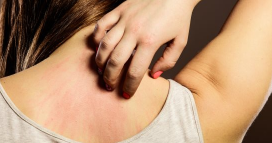 علاج الطفح الجلدي بالطرق الطبيعية