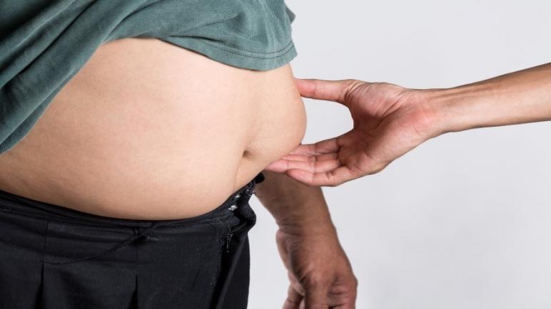 علاج ترهلات الجلد بعد خسارة الوزن الزائد